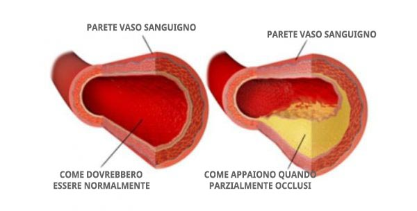 colesterolo i vasi sanguigni