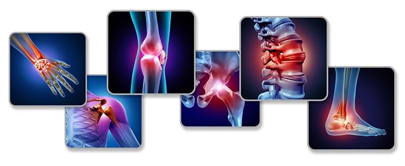 i più frequenti – dolori alle articolazioni delle ginocchia