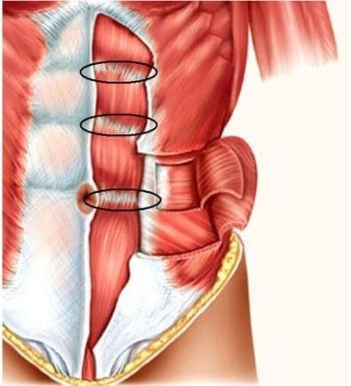 intersezioni tendinee - muscoli addominali